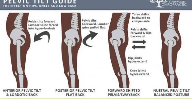 Fixing Posterior Pelvic Tilt