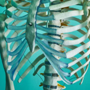 Chiropractic Care for Spinal Disc Herniation